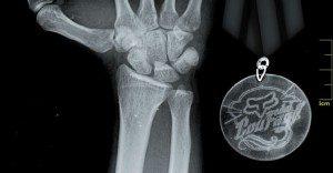 La marca deportiva FOX crea descuentos con las radiografías de sus deportistas