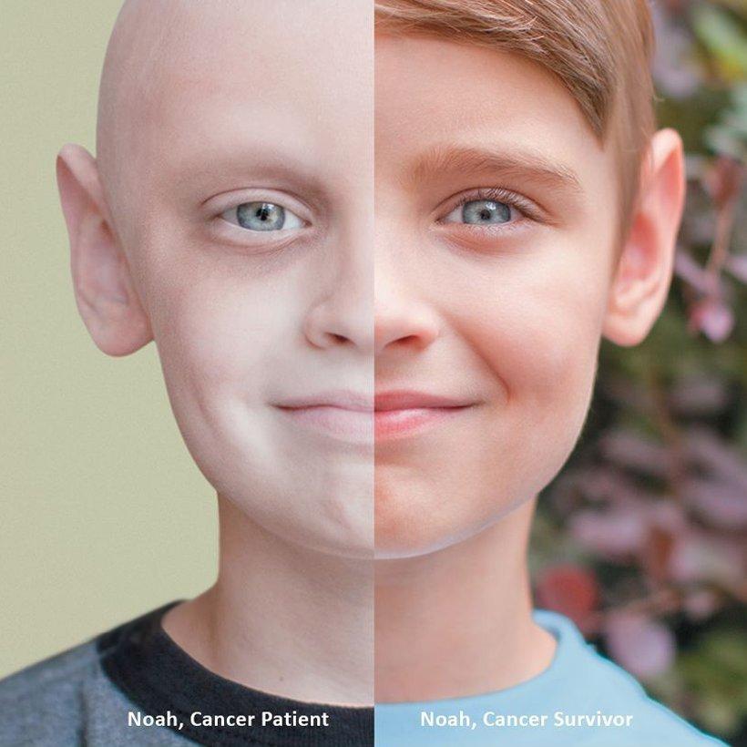Científicos investigan la posibilidad de un cáncer contagioso 01