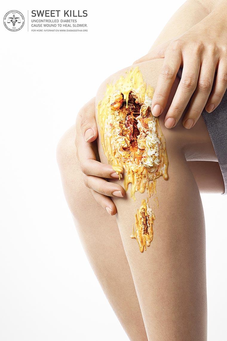 Una Campaña contra la diabetes que golosamente te impactará 08