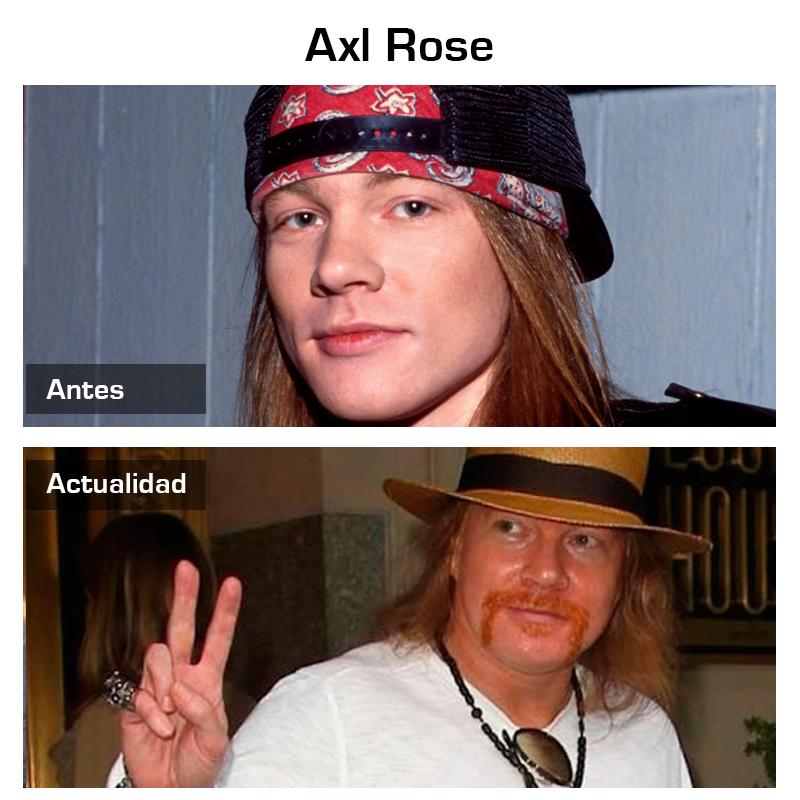 antes_y_despues_cantante_rock_axel_rose