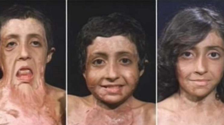 Este doctor se llevó a esta niña a su casa tras operarla. No creerán el cambio 00