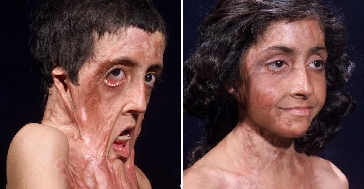 El antes y después de Zubaida.