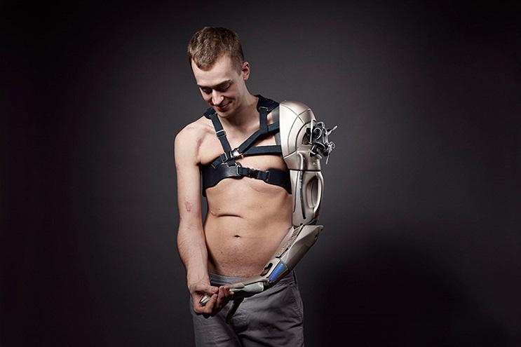 Este gamer con el brazo amputado recibirá la prótesis más alucinante que hay 01