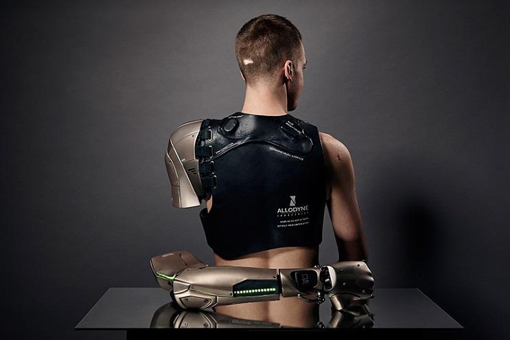 Este gamer con el brazo amputado recibirá la prótesis más alucinante que hay 04