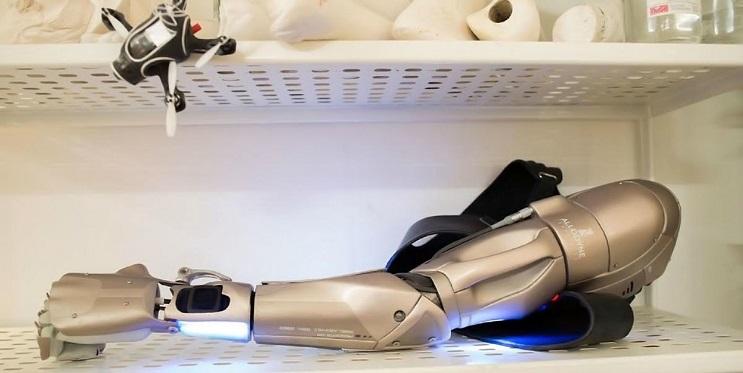 Este gamer con el brazo amputado recibirá la prótesis más alucinante que hay 07