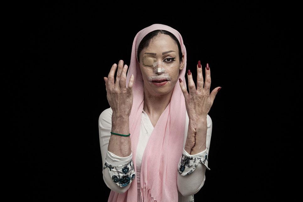 Impactantes fotografías que denuncian los ataques con ácido en Irán 02