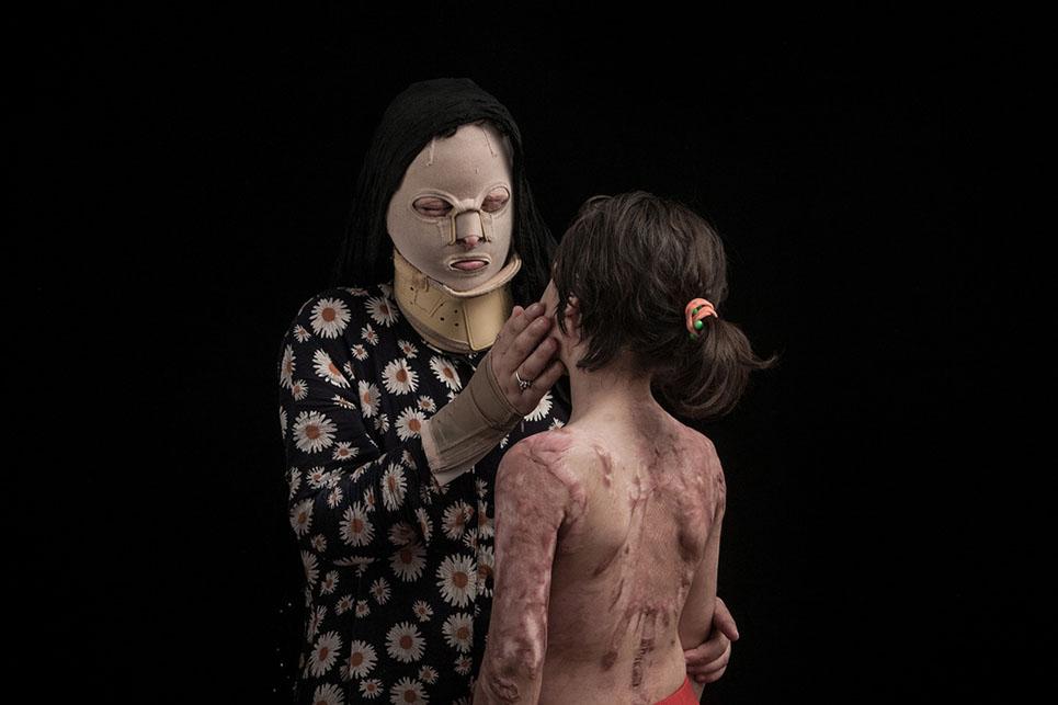 Impactantes fotografías que denuncian los ataques con ácido en Irán 03
