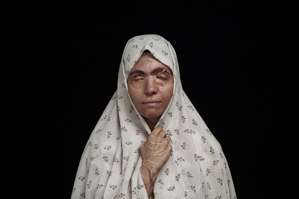 Impactantes fotografías que denuncian los ataques con ácido en Irán 05