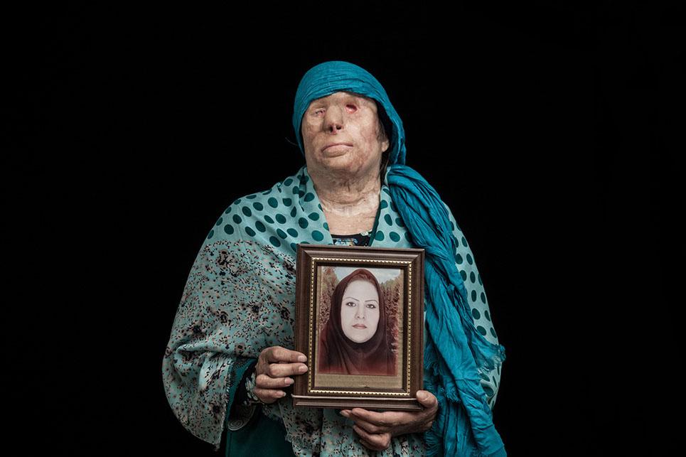 Impactantes fotografías que denuncian los ataques con ácido en Irán 06