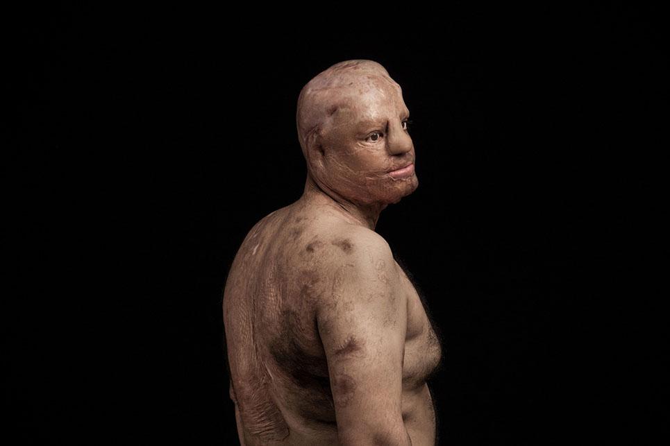 Impactantes fotografías que denuncian los ataques con ácido en Irán 08