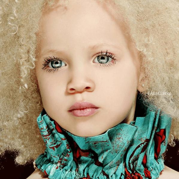 Ava Clarke la niña albina de raza negra que cautiva en el mundo de la moda 01