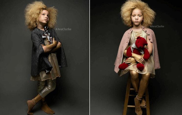 Ava Clarke la niña albina de raza negra que cautiva en el mundo de la moda 03