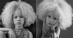 Ava Clarke: la niña albina de raza negra que cautiva en el mundo de la moda