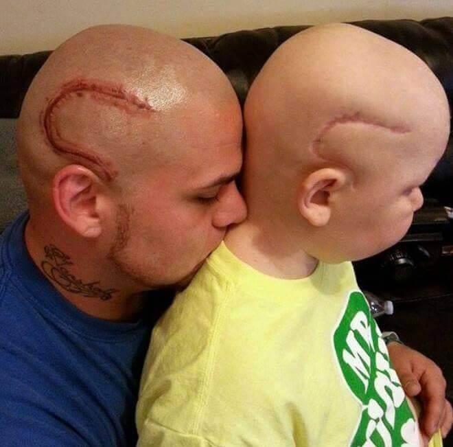 Este padre se tatuó una cicatriz como la que tiene su hijo en la cabeza para apoyarlo en un difícil momento 01