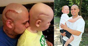 Este padre se tatuó una cicatriz como la que tiene su hijo en la cabeza para apoyarlo en un difícil momento