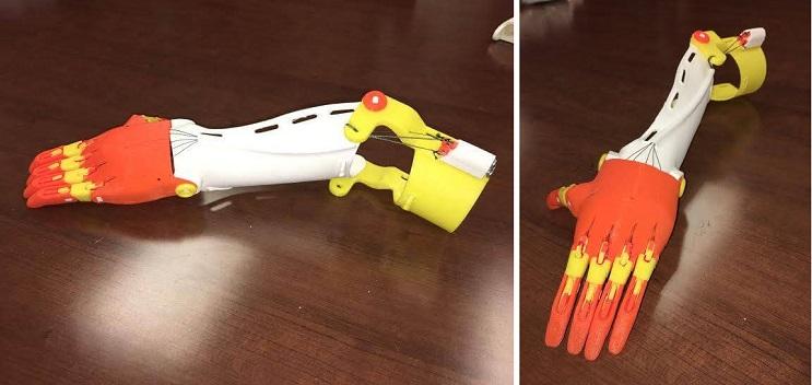 Cumplieron el sueño de esta niña al diseñarle una prótesis de su película favorita de Disney  03
