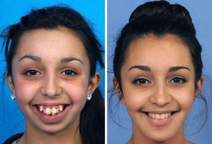 Mujer luce irreconocible después de una operación de mandíbula 2