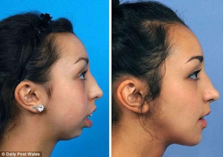 Mujer luce irreconocible después de una operación de mandíbula 3