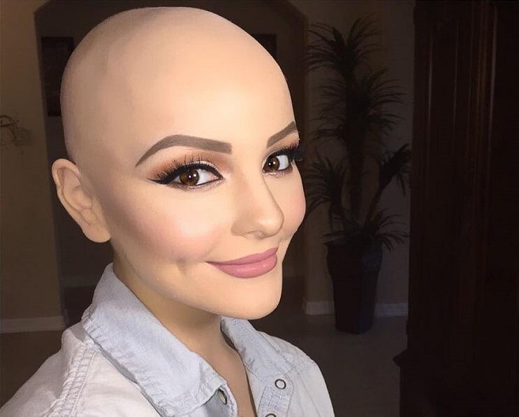 Chica fotografías sin cabello - Andrea Sierra Salazar 5