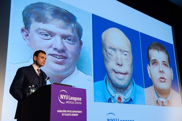 Patrick Hardison transplante rostro equipo medico