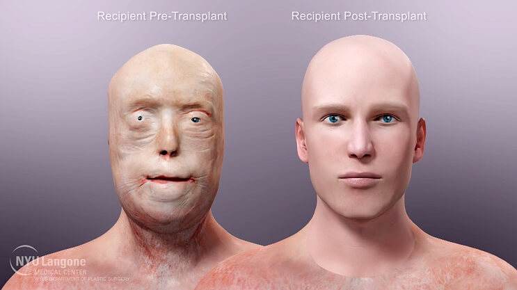 Patrick Hardison transplante rostro operacion