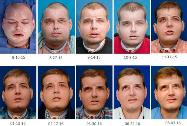 Patrick Hardison transplante rostro proceso