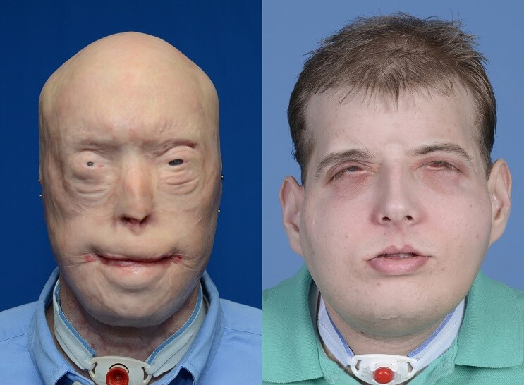 Patrick Hardison transplante rostro