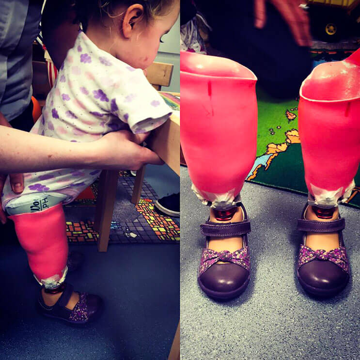 Pequeña luchadora que perdió las extremidades recibe una muñeca muy especial 7