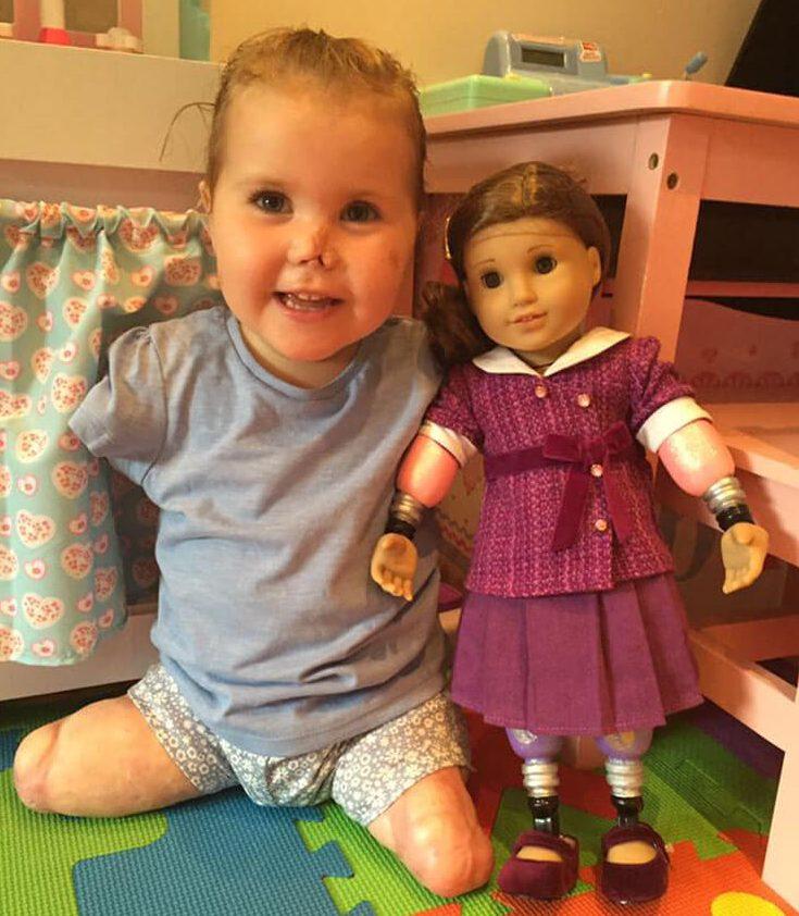 Pequeña luchadora que perdió las extremidades recibe una muñeca muy especial