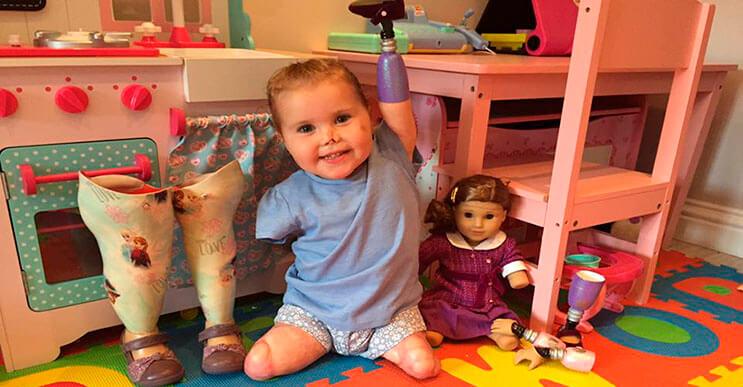 Pequeña luchadora que perdió las extremidades recibe una muñeca muy especial portada