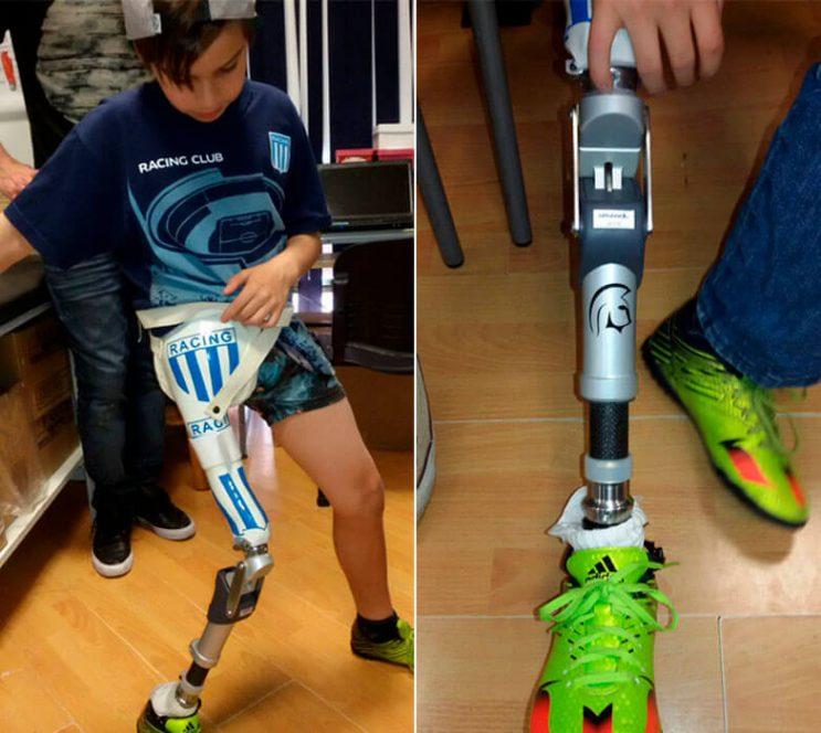 un-conocido-club-de-futbol-argentino-regala-una-protesis-a-un-nino-y-se-vuelve-viral-3