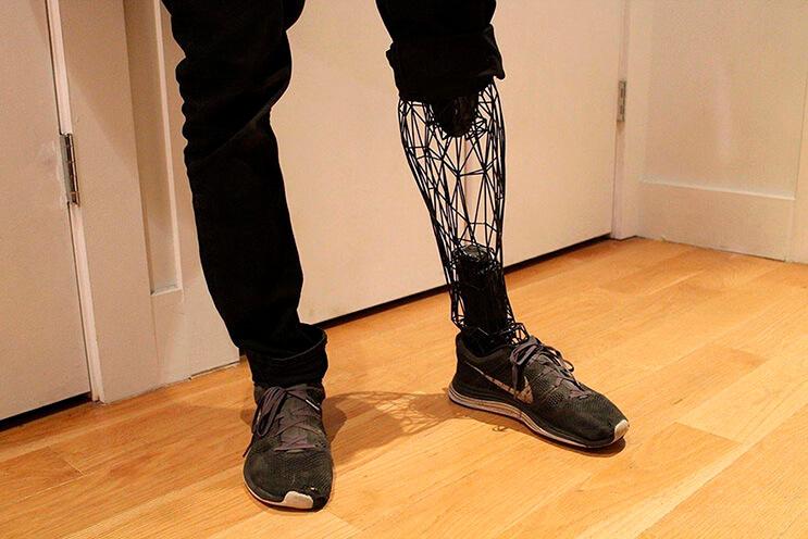 el-diseno-de-esta-pierna-de-titanio-lleva-a-las-protesis-un-paso-mas-alla-por-su-efectividad-y-forma-1