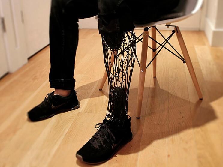 el-diseno-de-esta-pierna-de-titanio-lleva-a-las-protesis-un-paso-mas-alla-por-su-efectividad-y-forma-2